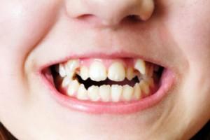 fix-overlapped-teeth-1